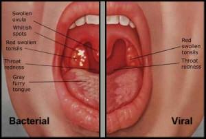 Tonsilitis, Tonsil, Tonsil Bengkak, Bacterial Tonsilitis, Viral Tonsilitis